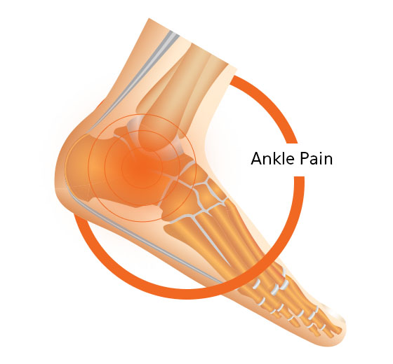 Ankle Pain How To Treat Ankle Pain What Causes Ankle Pain