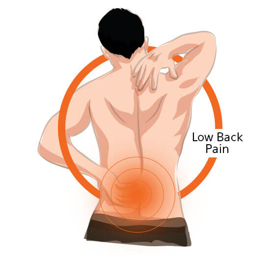 Low Back Pain Image