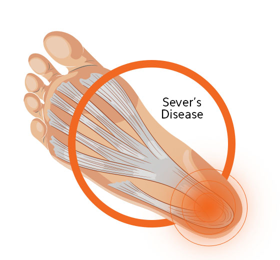 Sever's Disease Diagram Image